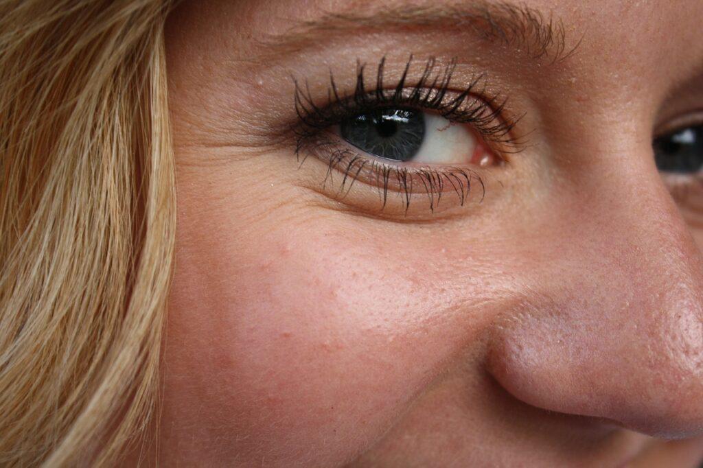 Botox idealny na zmarszczki