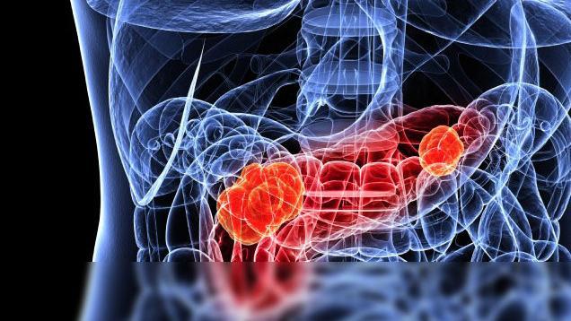 Czy wczesne rozpoznanie raka trzustki jest możliwe?
